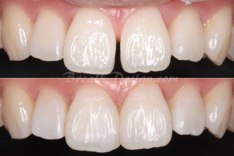 正中離開(すきっ歯)のダイレクトベニア治療
