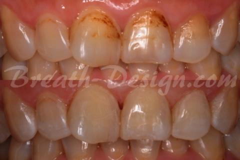 ダイレクトベニア 前歯の根元の変色