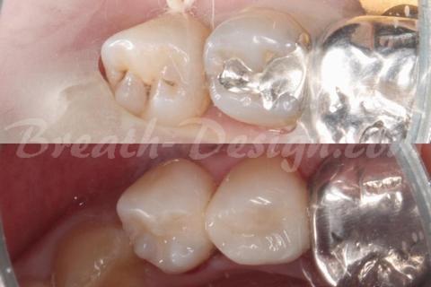 小臼歯のダイレクトボンディング治療 術前術後比較写真