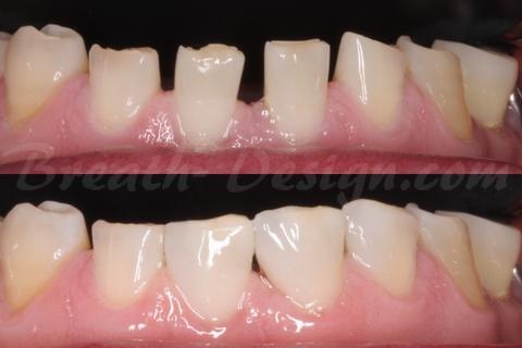下顎前歯のすきっ歯 ダイレクトベニア ダイレクトボンディング