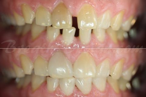 ダイレクトベニア すきっ歯 空隙歯列 正中離開