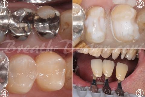 上顎小臼歯のハイブリッドセラミックインレー治療
