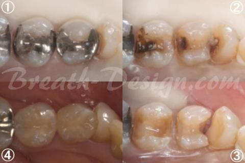 小臼歯のハイブリッドセラミックインレー