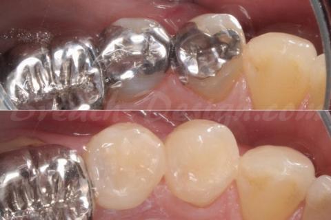 小臼歯のハイブリッドインレー